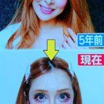 【画像あり↓】美女「整形に2億円以上かけたょ(パシャッ」wwwwwwww
